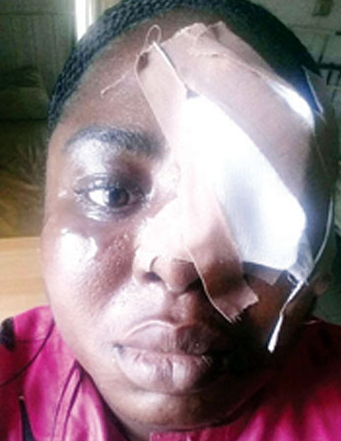 woman attacked sister husband ikorodu lagos