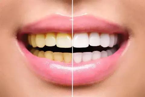 अगर आपके दाँत तंबाकू गुटका खाने की वजह से हो गए हैं पीले तो करें ये आसान उपाय