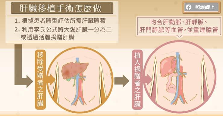 肝臟移植手術怎麼做