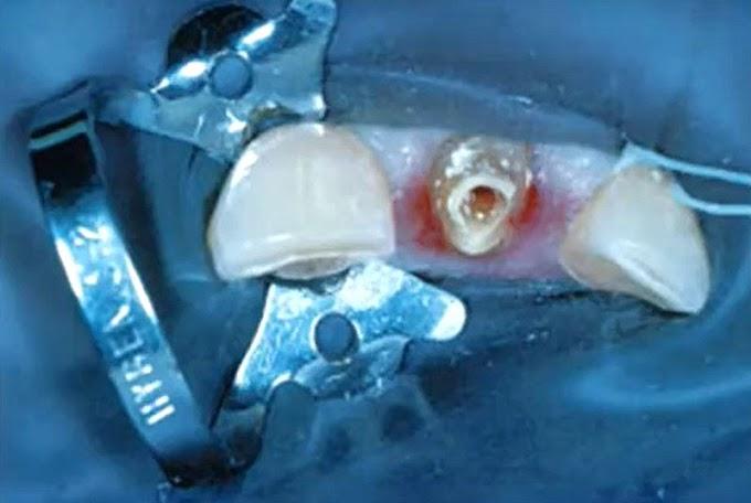 WEBINAR: Management of Dental Trauma - Dr. Emad Youssef