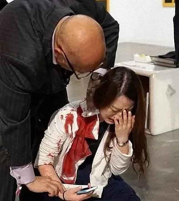 """Visitantes de museu confundiram mulher esfaqueada com obra de """"arte contemporânea"""""""