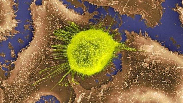 Imagen de una célula tumoral