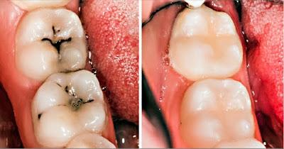 زيارة طبيب الأسنان الخاص بك لتنظيفٍ منتظم