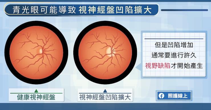 青光眼可能導致視神經盤的凹陷擴大