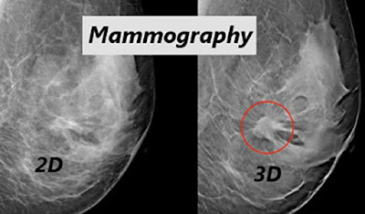 2D and 3D Breast Cancer Imaging Mammography