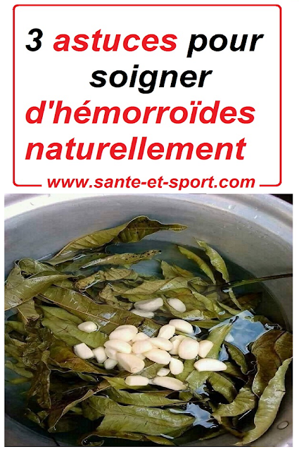 Soigner-hemorroides-naturellement-remede