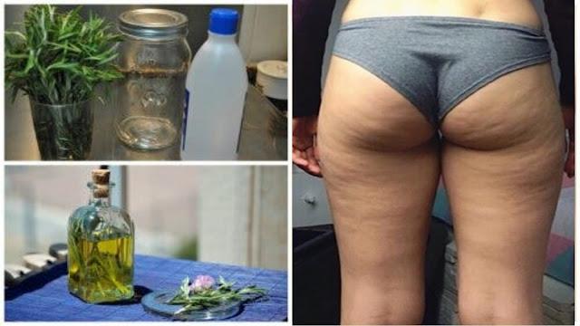 Comment bien appliquer l'alcool de romarin pour effacer la cellulite rapidement