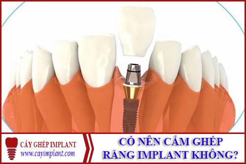 có nên cắm ghép răng implant không -1