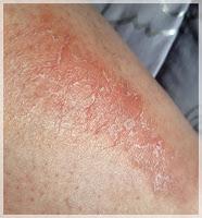 mon psoriasis en plaque sur les jambes