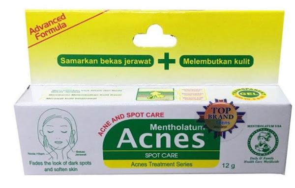Acnes Spot Care Krim Penghilang Bekas Jerawat Bopeng (Acne Scars)