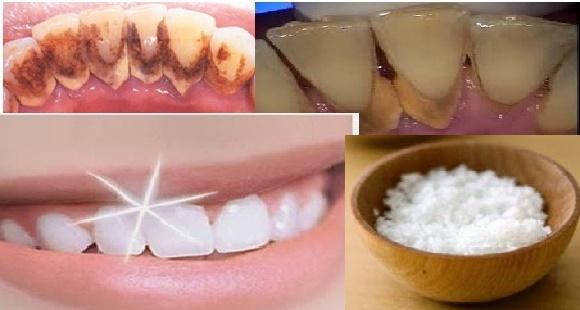 Tak Perlu Biaya Mahal Gigi Anda Putih Cemerlang Hanya Dalam 1