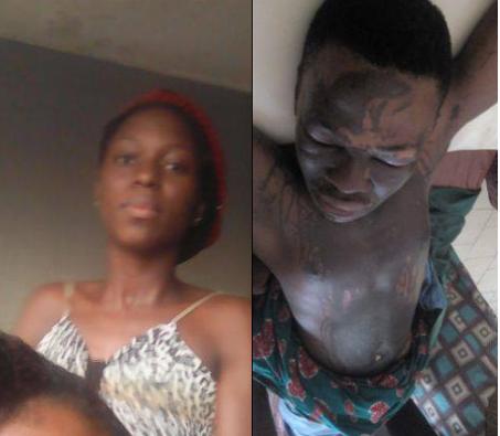 Lady Allegedly Bathes Ex-boyfriend With Acid In Akwa Ibom (Photos)