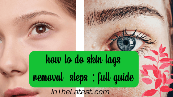 Wondering about skin tags removal ? We talked to expert dermatologists about safe skin tag elimination. Read on to find out how to get rid of skin tags