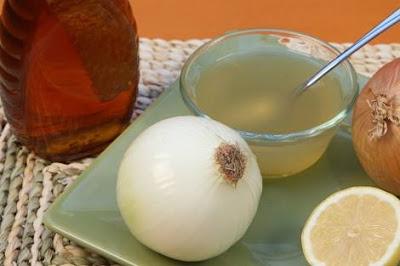 عصير البصل والعسل لعلاج تساقط الشعر عند الرجال والنساء