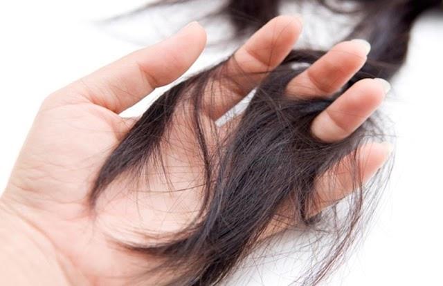Sau sinh tóc rụng hói cả đầu, và đây là lời khuyên từ bác sĩ
