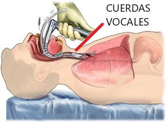 Rehabilitación logopédica tras intubación covid-19