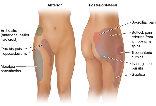 signs and symptoms Buttock Pain Cancer
