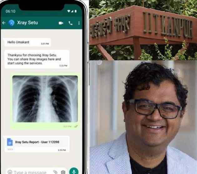 X-RAY bridge on Whatsapp will tell whether Corona Infection or not, will give Information about 14 Diseases: Know it Here