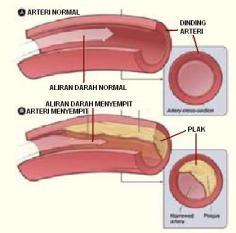 Cara Pengobatan Pembuluh Darah yang Tersumbat