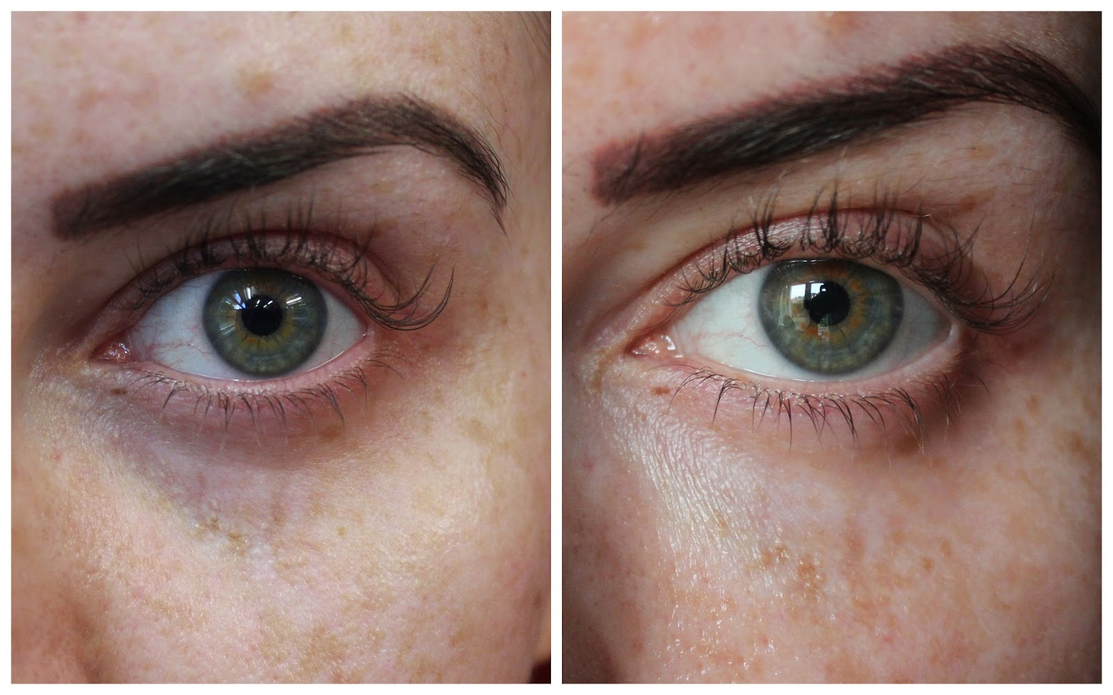 Tear Trough Filler Before And After At The Milo Clinic By Dr