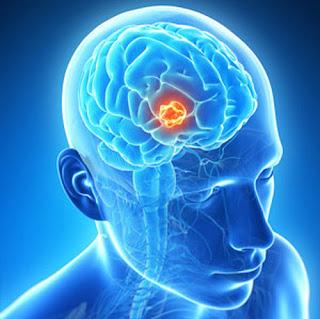 http://www.thebrainandspine.com/brain-tumor-surgery/