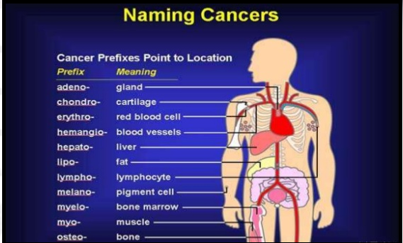 Signs and Symptoms of Cancer Types, Symptoms, Causes, Tests, and Treatments