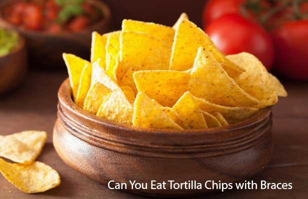Can You Eat Tortilla Chips with Braces