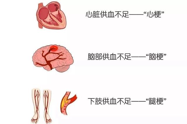 不想腦梗、心梗,千萬遠離三物,常飲二種水,做好一件事(高血壓)
