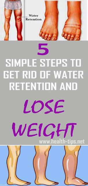 How to Get Rid of Water Retention and Lose Weight With 5 Simple Steps#NATURALREMEDIES