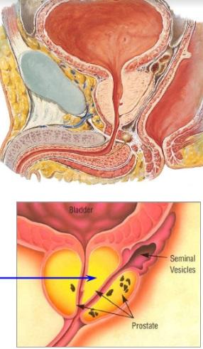 Prostat Kanserini Önlemenin Doğal Yolları