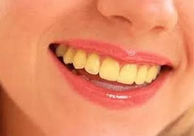 penyebab-gigi-kuning