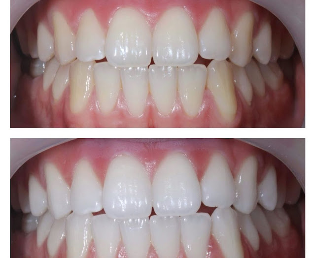 Pour avoir des dents plus blanches vous n'avez qu'à consommer ces aliments