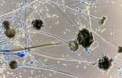 Skin black fungus