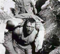 WW1-Battle of the Somme - allied soldier wounded at the start of the battle. He was dead within half a hour.