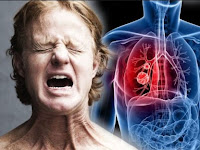 Lung cancer - symptoms and early signs in men