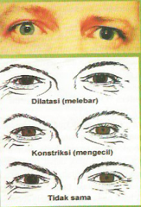 Pupil Tidak Simetris