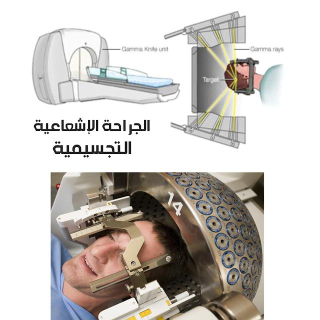 ما هي طريقة الجراحة الإشعاعية التجسيمية وما ميزتها؟