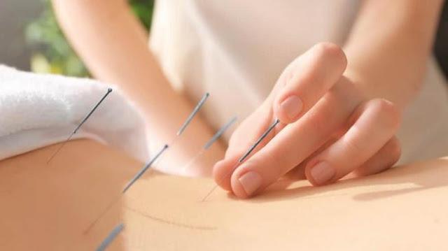 Perhatikan 4 Hal Penting Berikut Ini Sebelum Melakukan Pengobatan ke Spesialis Akupuntur