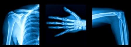 What is X-Ray ?