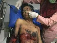 Ini Dia Foto Terduga, Pelaku Bom di Tugu Kartasura Jawa Tengah