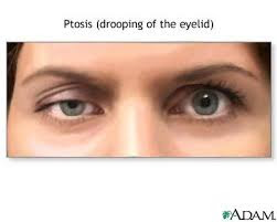 unilateral ptosis