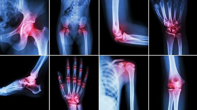 تشخيص التهاب المفاصل بالاشعة