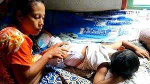 Asyik Bemain, Seorang Balita Diserang Kawanan Monyet, Dapat 42 Jahitan di Punggung