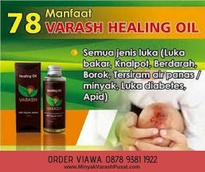 Manfaat minyak Varash Classic