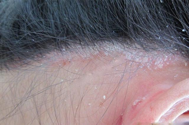 Làm thế nào để chọn loại thuốc trị vẩy nến da đầu tốt nhất?