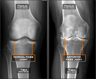 Osteoarthritis X- ray view of knee joint