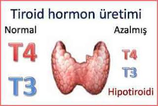 hipotiroidi sebepleri