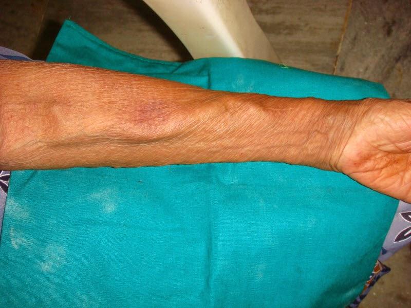 Spesialis Bedah Vaskular dan Endovaskular Akses Vaskular