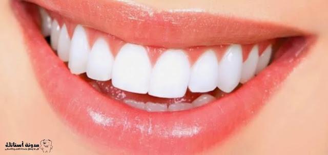 كيفية تبييض الأسنان بطرق جديدة وعصرية.