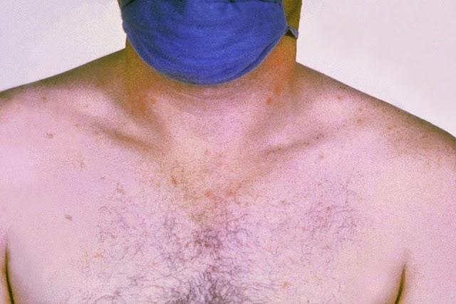 Typhoid | Symptoms of Typhoid | Typhoid Treatment | Typhoid Vaccine